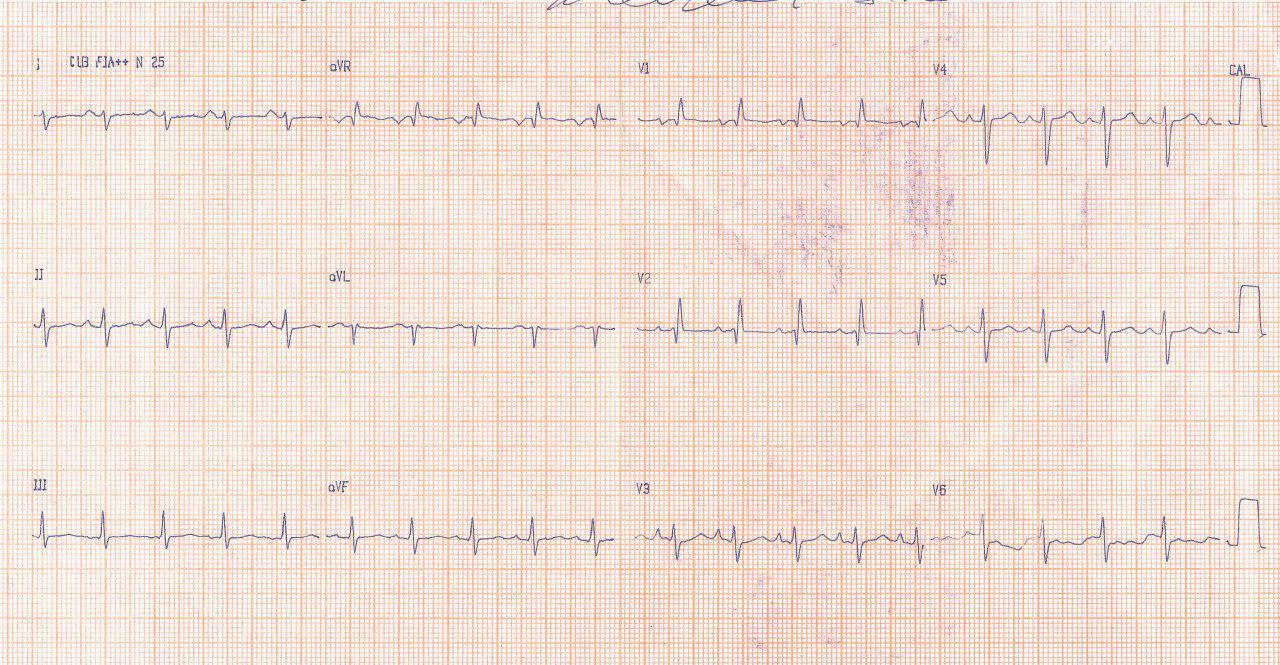 Mujer de 43 años con fatiga, pérdida de peso, palpitaciones y presíncope con 1º R cardíaco fuerte en la auscultación que presenta mixoma de aurícula izquierda