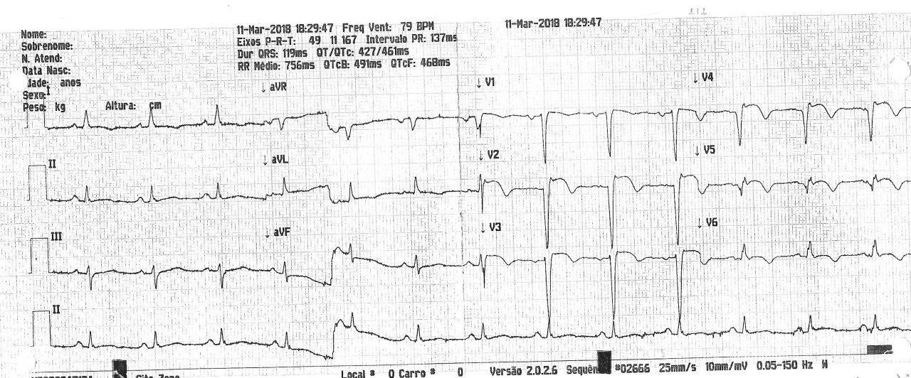 Paciente de 75 años con angor y disnea con antecedentes de infarto previo que presenta obstrucción total de la arteria DA y presencia de aneurisma de cara anterior de VI
