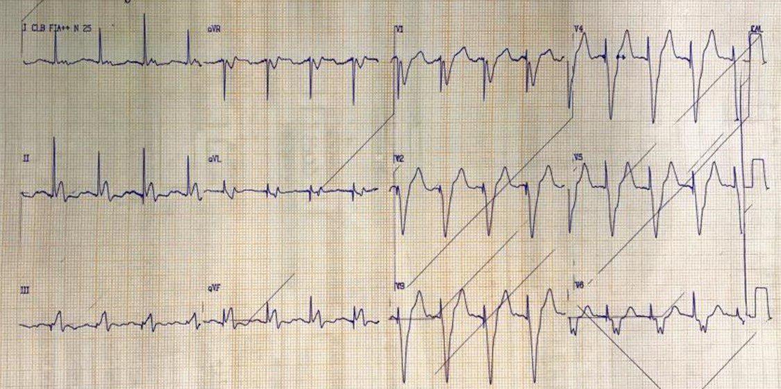 Paciente portador de MP con angor prolongado y presencia de supradesnivel discordante de ST > de 5 mm por suboclusión en la bifurcación entre DA y arteria diagonal y oclusión total de CD