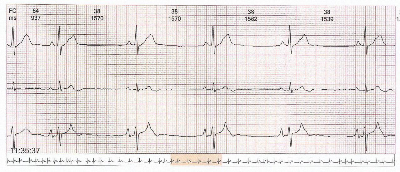 Paciente de 46 años que presenta ESV fecuente, en ocasiones bloqueadas determinando ritmo bradicárdico que posteriormente presenta AA atípico y más tarde EVs frecuentes