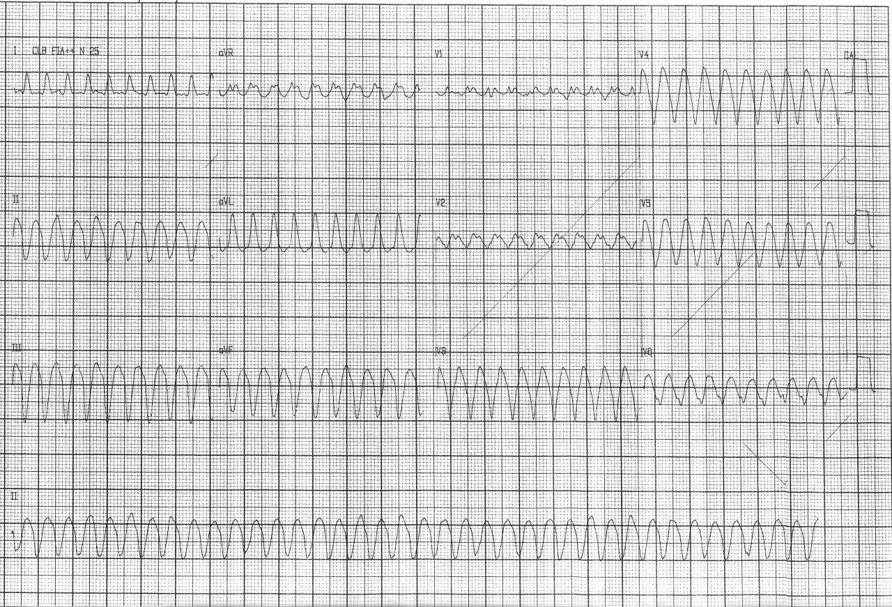 Paciente de 61 años con FR que presenta disnea y episodios sincopales debidos a AA 1:1 que debe revertirse por obstrucción crónica de DA 100%