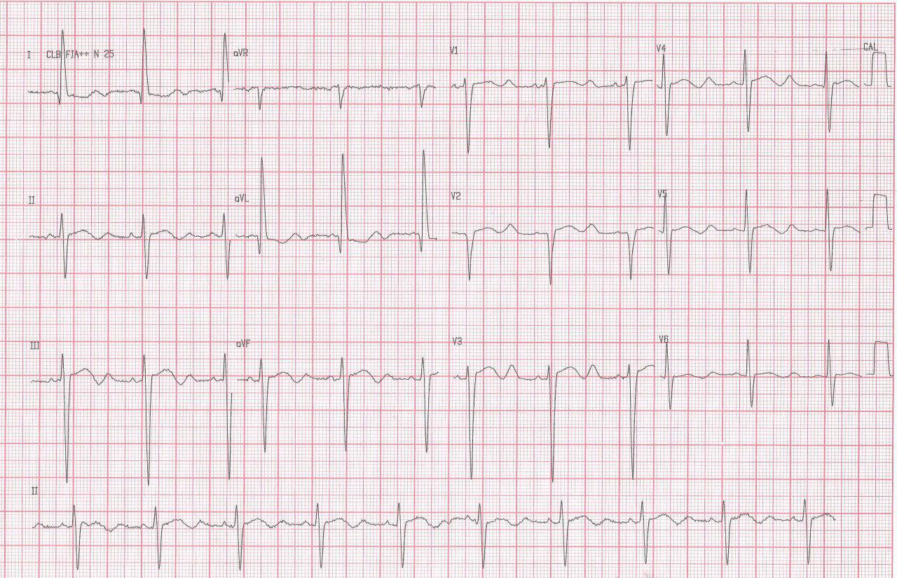 Anciano con debilidad muscular por hipopotasemia de 1,7 meq/l que presenta onda U gigante en el ECG