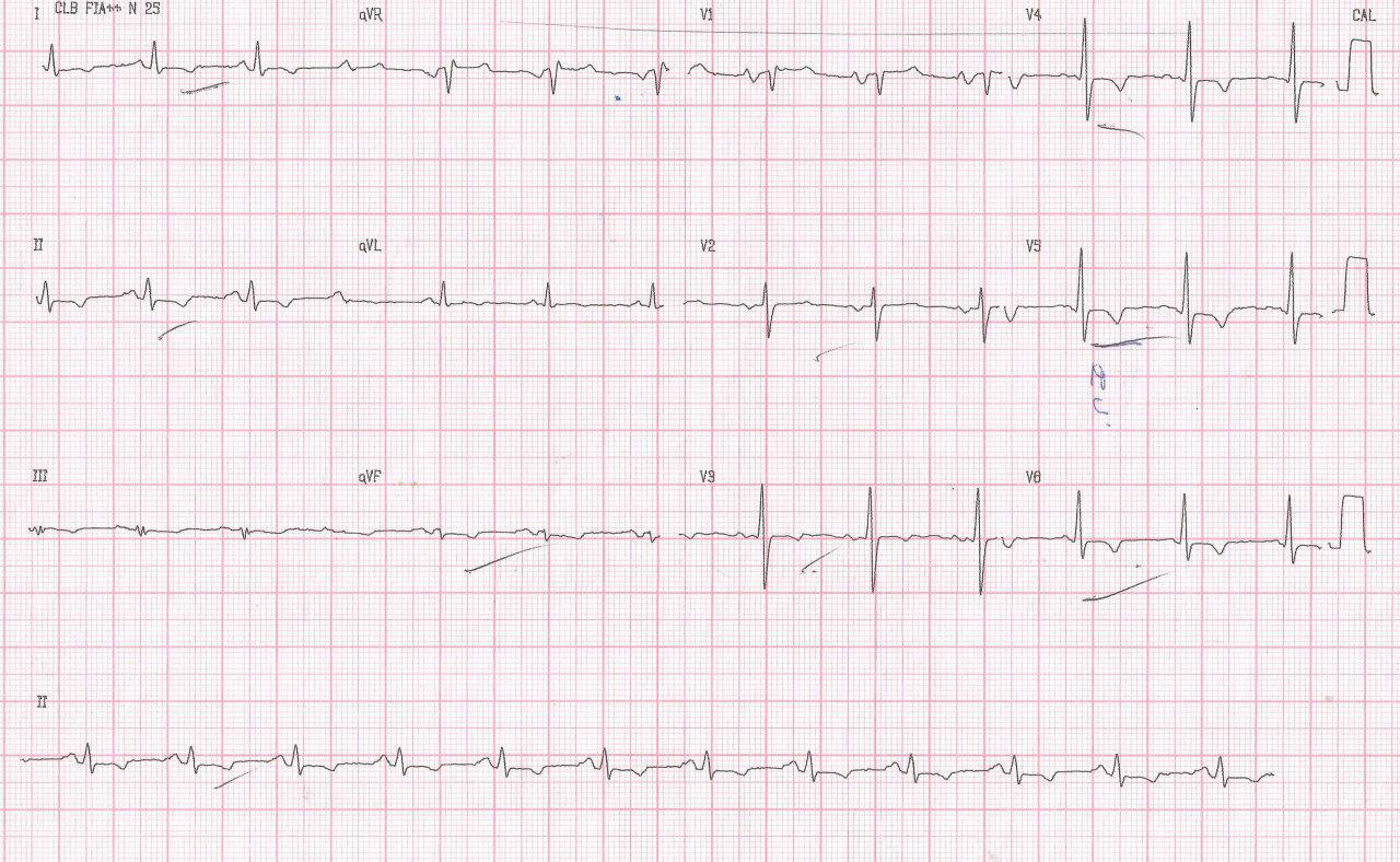 Paciente de 33 años con disnea progresiva y edemas en MI por pericarditis constrictiva