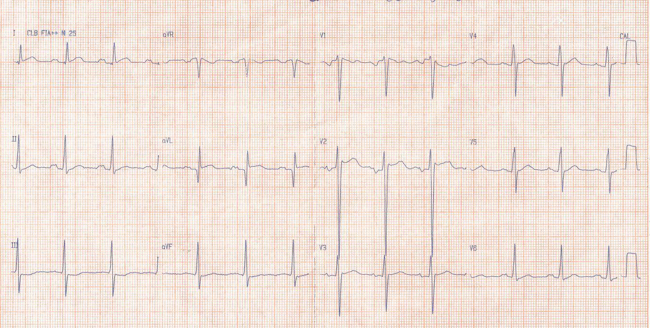 Mujer de 29 años con angor y disnea progresivos por miocardiopatía hipertrófica asimétrica que presenta episodios de TV