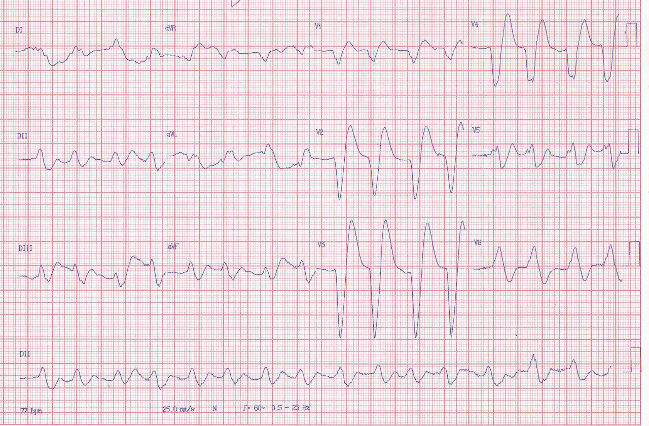 Paciente de 63 años con cuadro de insuficiencia cardíaca que presenta disnea y disminución del nivel de consciencia que presenta marcada hiperpotasemia