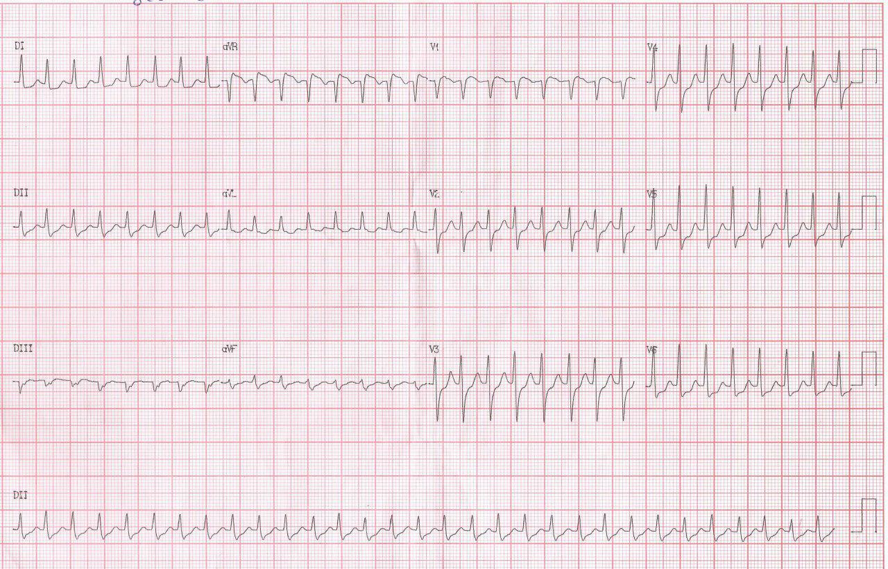 Mujer de 65 años con palpitaciones recurrentes por taquicardia por doble fisiología nodal que se controla con adenosina presentando marcada prolongación del AH