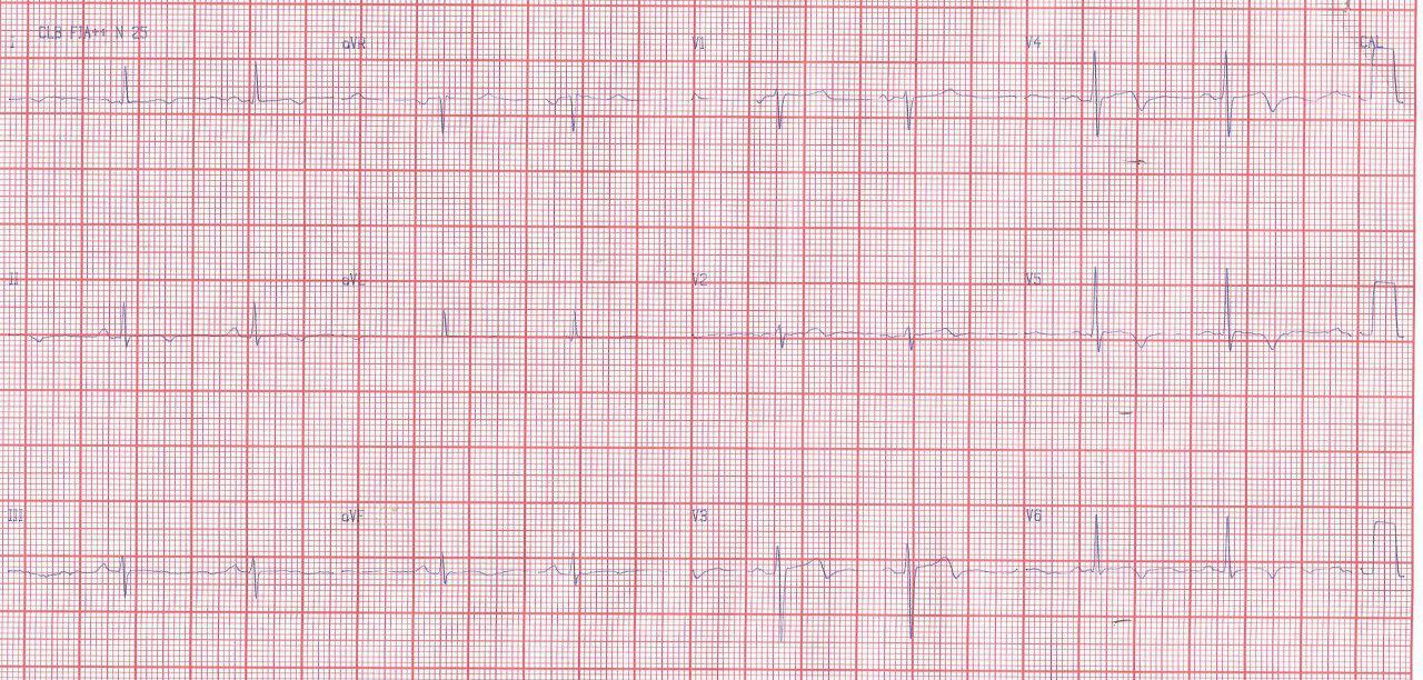 Paciente de 76 años con FR que presenta angina inestable con presencia de patrón ECG de Wellens tipo I por suboclusión de DA proximal