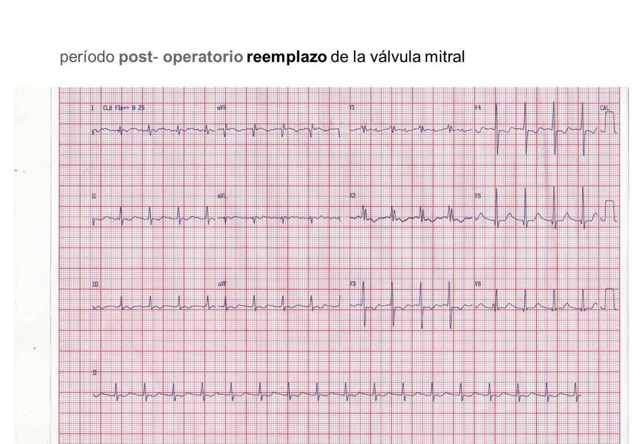 ECG de postoperatorio de reemplazo valvular mitral donde se observa taquicardia auricular con BAV 2:1 corroborada en EEF