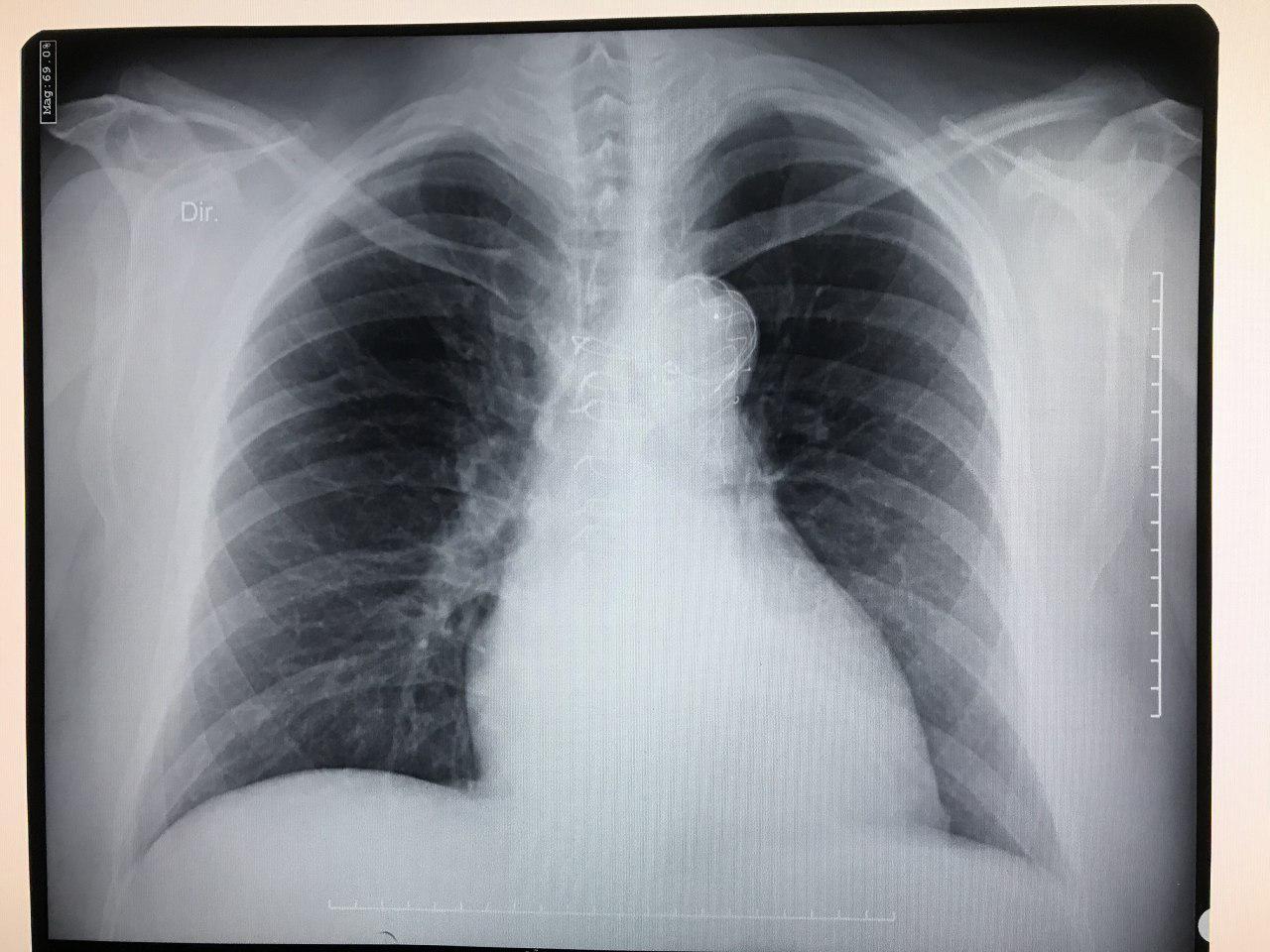Paciente de 43 años portador de síndrome de Marfan con antecedente de procedimiento de Bentall en 2004 y endoprótesis aórtica en 2013 por disección aórtica