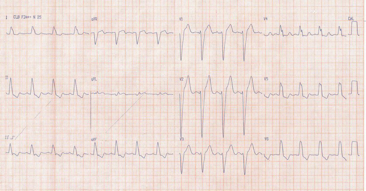 ECG de paciente con CCG normal que muestra BCRI verdadero o estricto