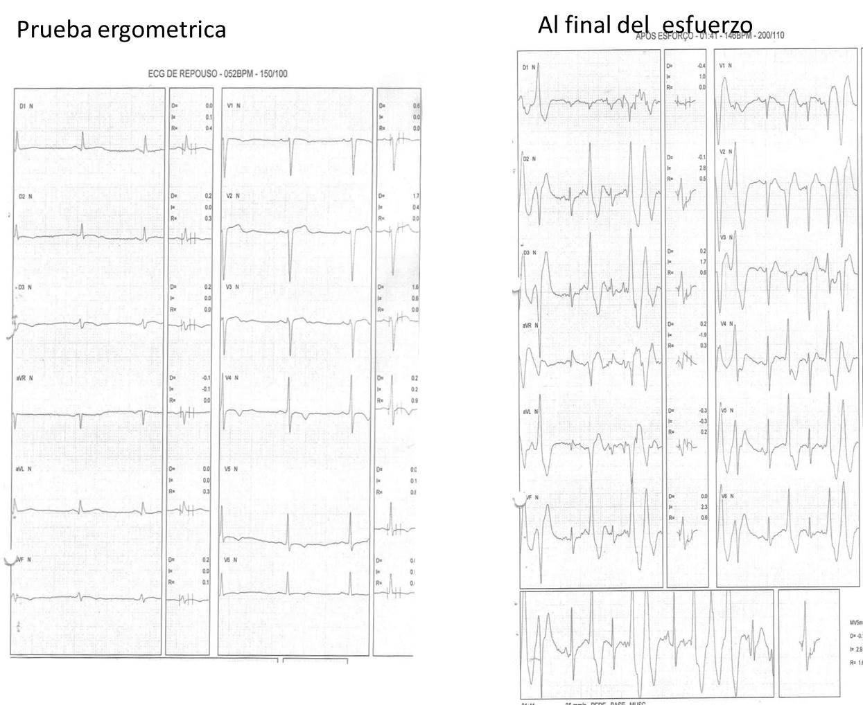 Paciente de 44 años con antecedentes de episodios de pérdida de conciencia durante esfuerzos que presenta taquicardia ventricular catecolaminérgica