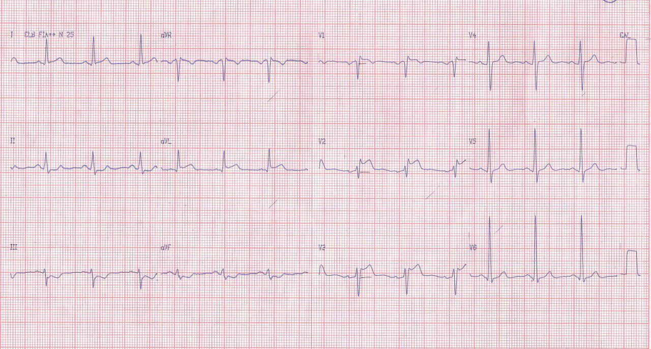 Hombre de 46 años que presenta angor prolongado constatándose lesión del 40% en arteria Diagonal con presunción de espasmo sobre la misma