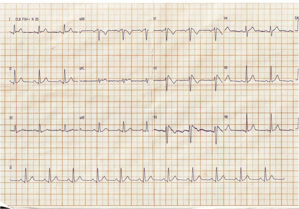 Dos pacientes portadores de patrón ECG de Brugada con diferente probabilidad de presentar arritmia ventricular