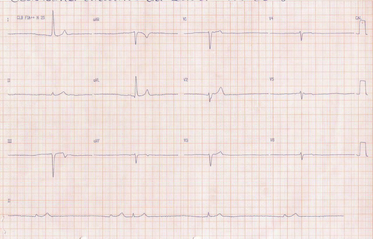Mujer de 78 años polimedicada recibiendo carvedilol con sensación de desmayo por presentar ritmo de la unión con muy baja frecuencia ventricular que desaparece al suspender el b bloqueante