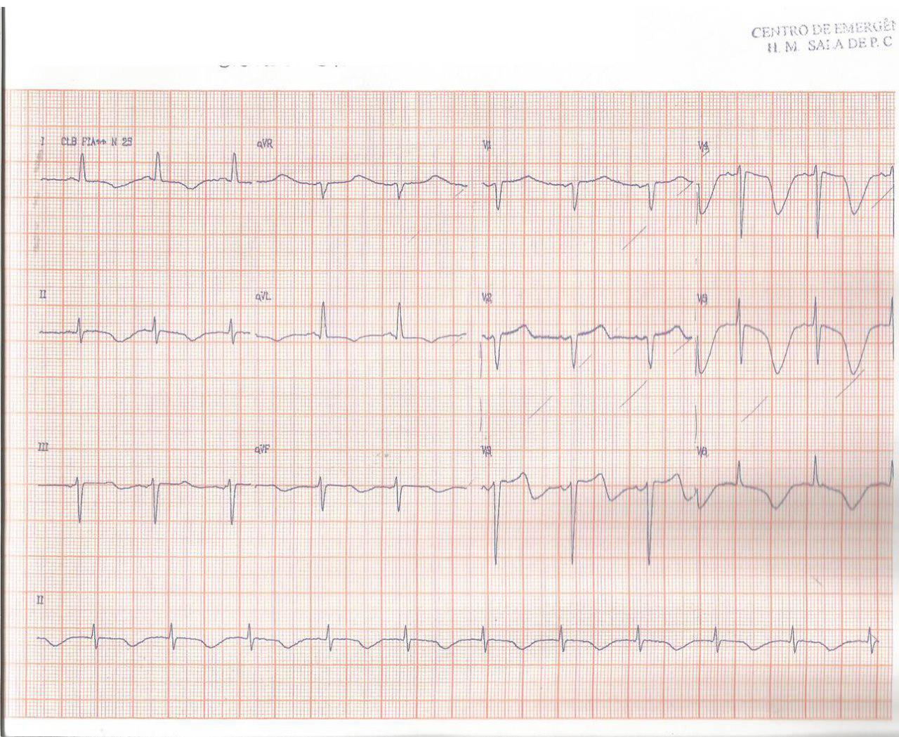 Paciente hipertenso de 67 años con somnolencia por presentar hemorragia subaracnoidea con típicos cambios de QT prolongado y ondas T negativas