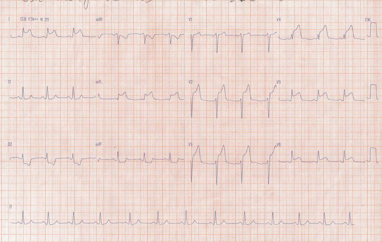 Paciente de 23 años con antecedentes familiares de enfermedad coronaria, consumidor de drogas ilícitas que presenta SCA por presencia de trombo en DA y que previo a CCG muestra un RIVA por posible reperfusión espontánea parcial