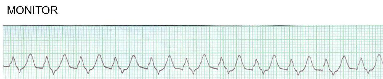 Paciente hipertenso y diabético que cursa con severa hiperkalemia de 8,3 mEq/l