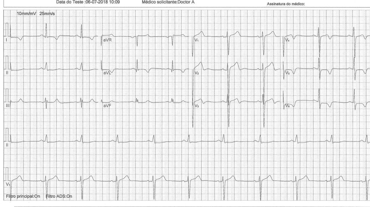Paciente masculino de 47 años con disnea y mareos por presentar miocardiopatía hipertrófica asimétrica obstructiva