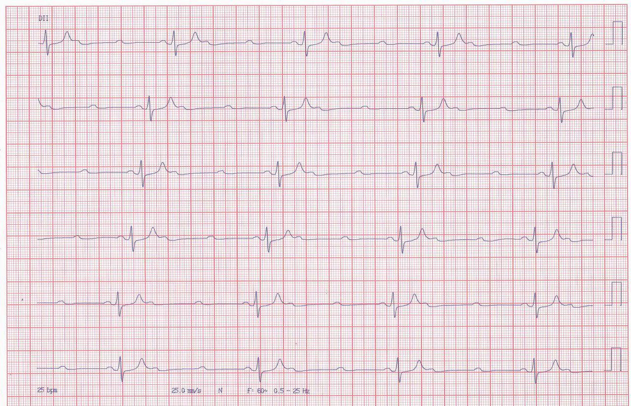 Paciente que presenta episodio sincopal por BAV de alto grado que no responde a la estimulación del MP por sobresensado de la onda T gigante por hiperkalemia