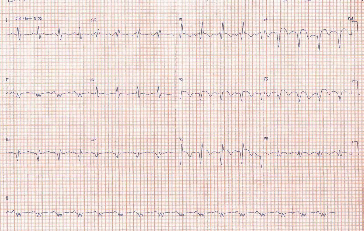 Paciente de 45 años que presenta EAP complicando infarto anterior en evolución e infarto previo inferior con aparición de RIVA por reperfusión incompleta luego del implante de dos stents en obstrucción completa de DA con trombo y 99% de CD