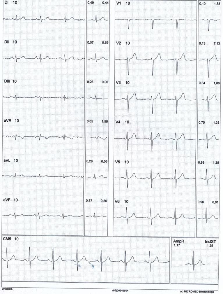 Paciente de 46 años, asintomatico con FR, que realiza PEG que resulta + por angor y ST por oclusión proximal de DA