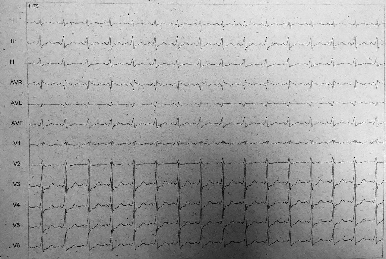 Paciente de 63 años que comienza con palpitaciones que se interpretan debidas a presencia de taquicardia ortodrómica y luego antdrómica con ablación exitosa
