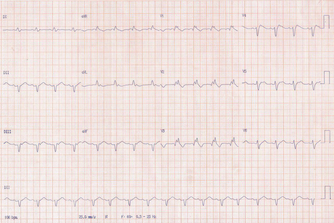 Paciente masculino de 60 años con factores de riesgo e historia familiar de MS que presenta angor prolongado por SCA debido a obstrucción total de la DA