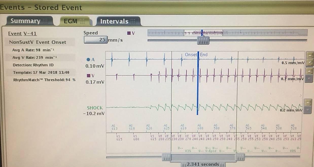 Electrogramas de CDI en un paciente portador de miocardiopatía arritmogénica de VI donde se observa presencia de disociación AV y luego episodio de TA