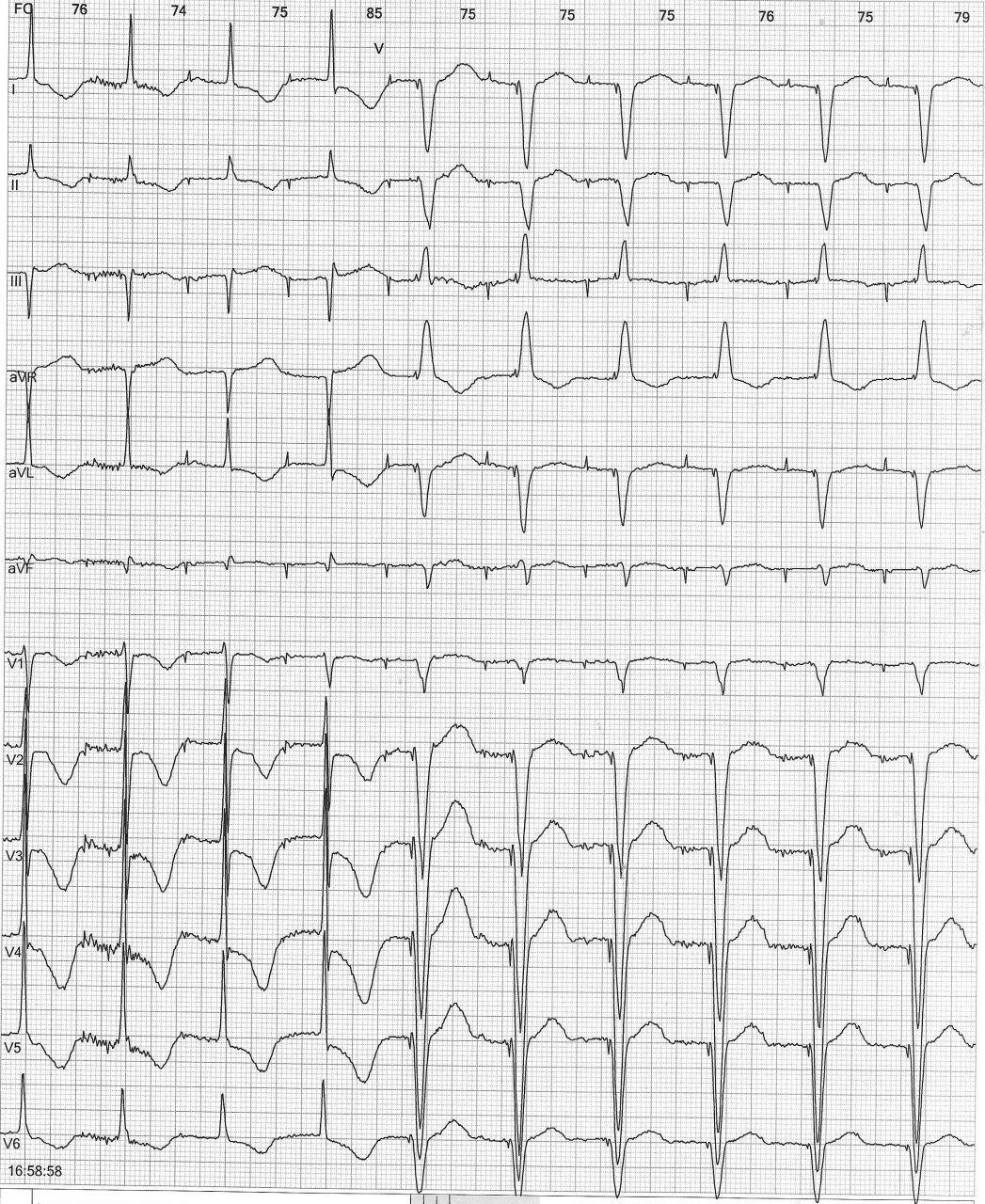 Paciente portador de MP y en tratamiento con amiodarona que presenta ondas T negativas electrotónicas