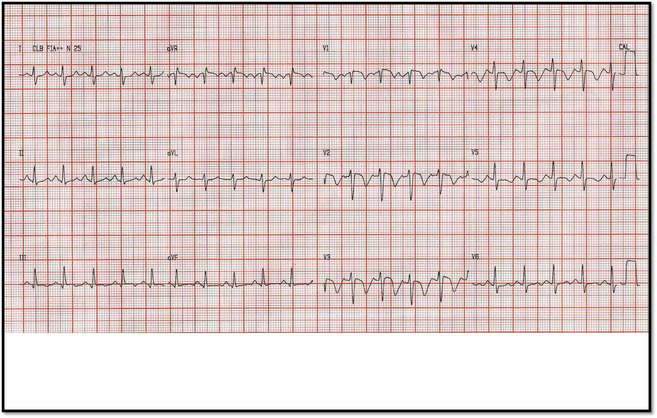 Paciente obeso de 32 años con dolor precordial y disnea súbitos por presentar TEP bilateral con presencia de trombos