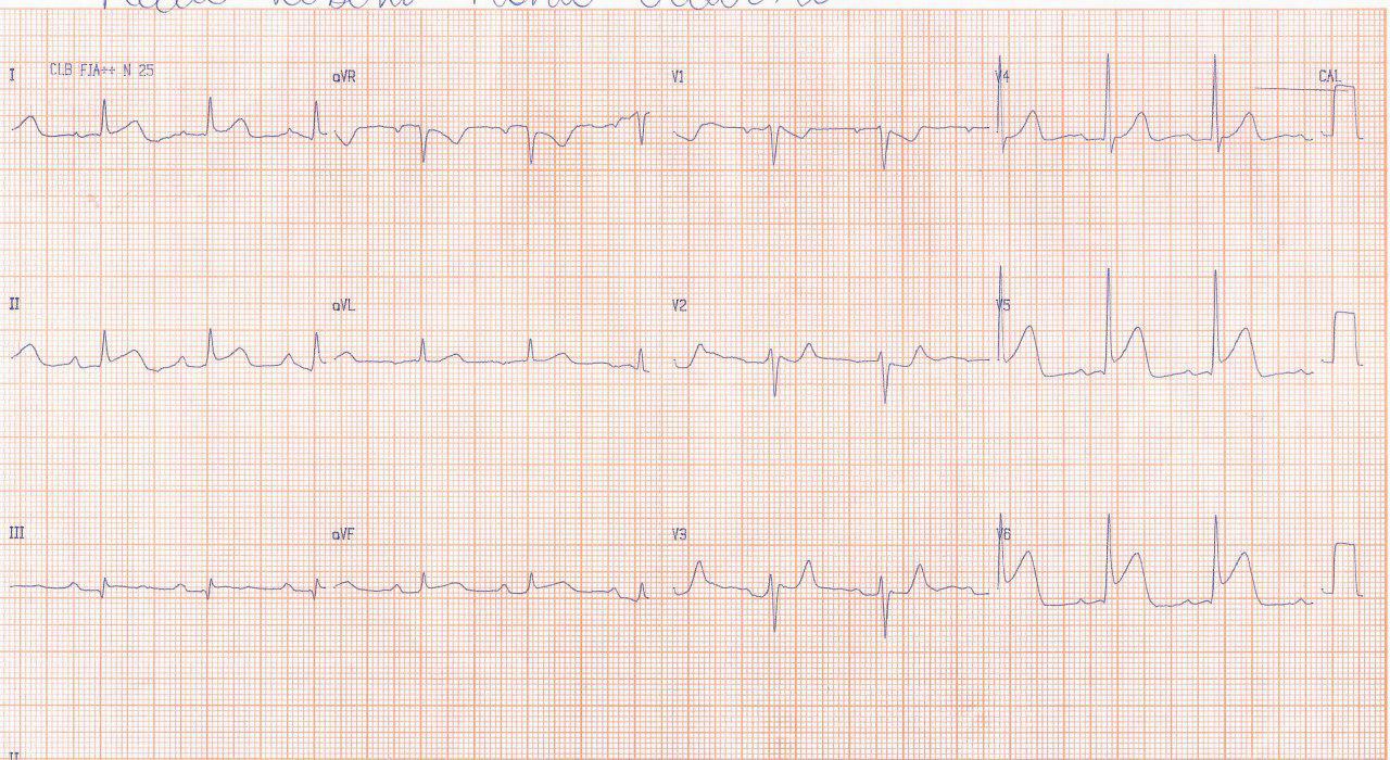 Dos casos de SCA: el primero por compromiso de la arteria Cx y el segundo, más grave por compromiso de la DA