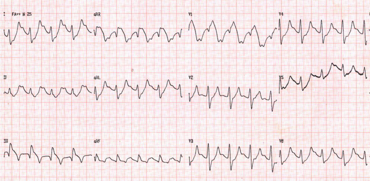 Paciente hipertenso y diabético con dolor precordial que presenta hipercalemia que al ser corregida, muestra mejora de los cambios electrocardiográficos