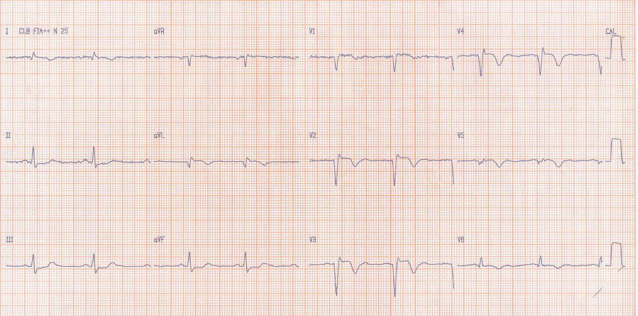 Paciente en insuficiencia cardíaca clase III que presenta tres signos electrocardiográficos sugerentes de aneurisma ventricular: fQRS, bajo voltaje en V5 V6 y elevación persistente del ST