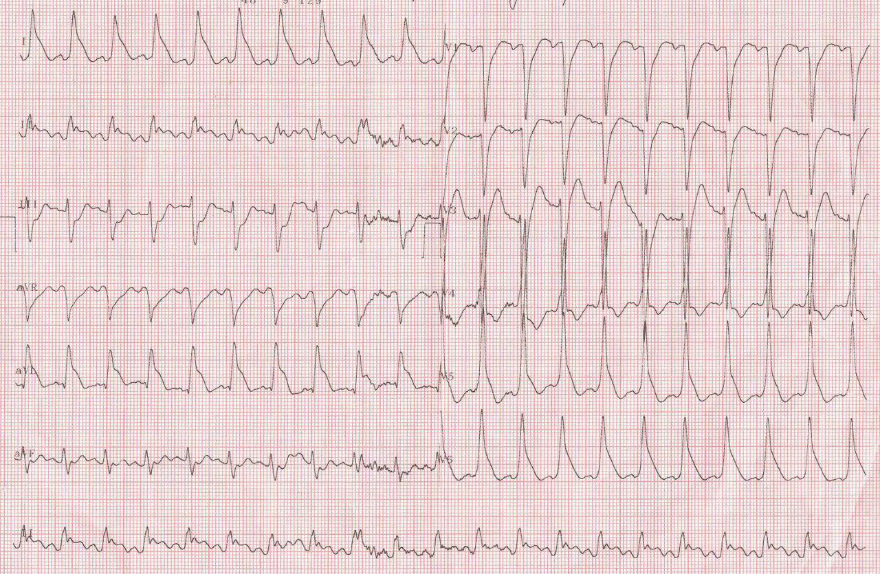 Paciente de 40 años portador de miocardiopatía dilatada probablemente alcohólica y CCG normal que ingresa con FV que logra revertirse mostrando el ECG postreversión ondas lambda