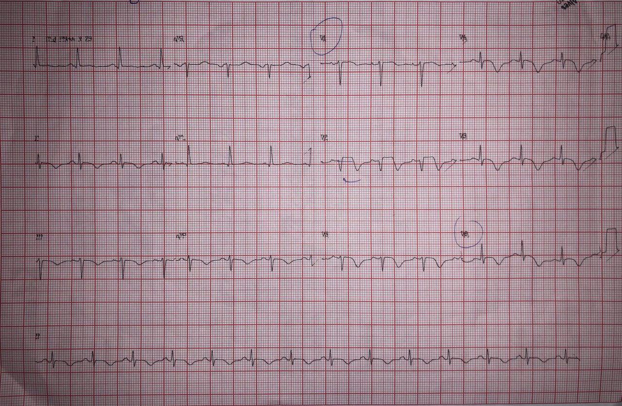 Mujer de 79 años con angor prolongado luego de stress emocional que cursa con leve elevación de troponina y tiene arterias coronarias normales en CCG constatándose síndrome de Tako Tsubo