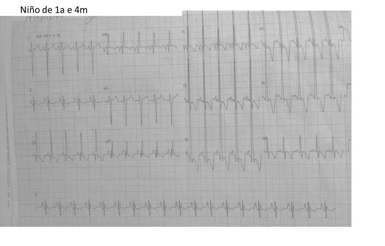 Niño de 1 año 4 meses con soplo sistólico y frémito en foco pulmonar por estenosis valvular pulmonar severa