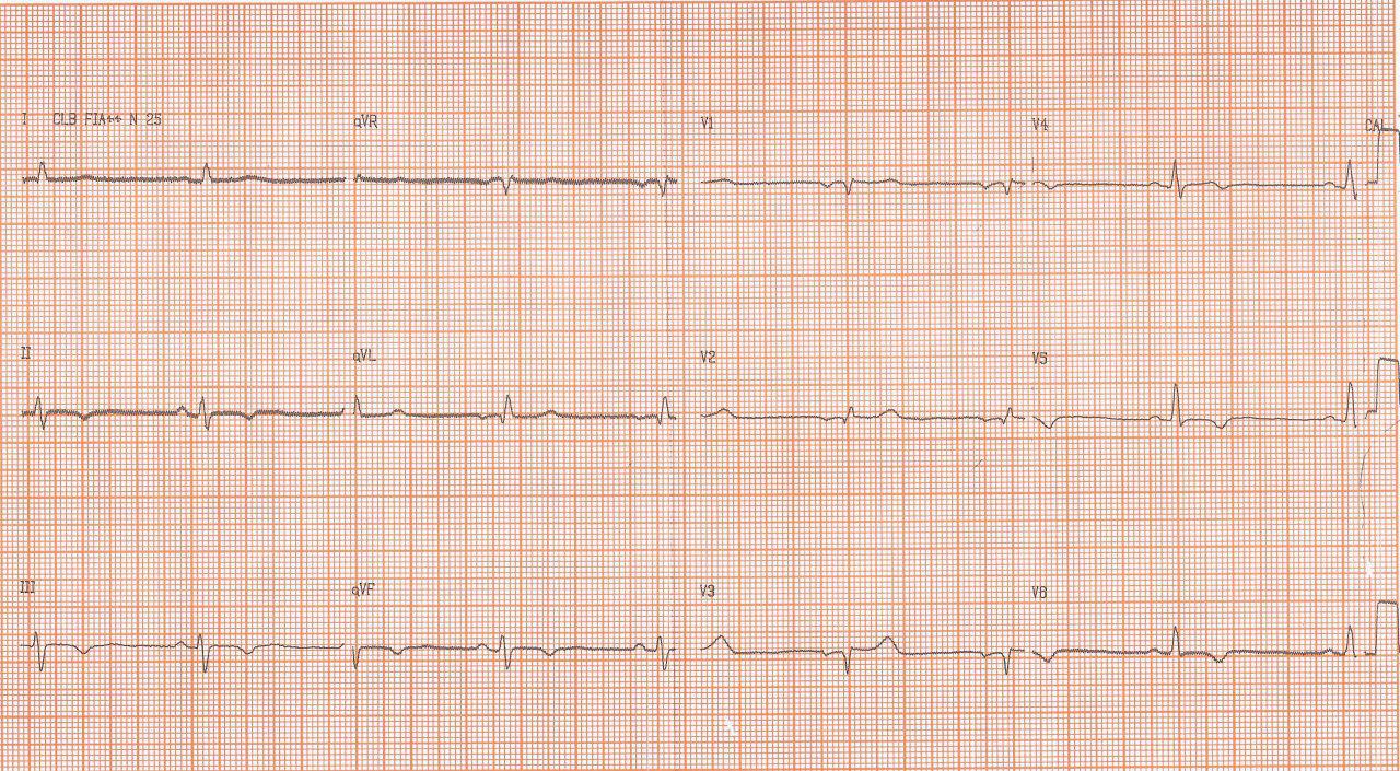Evolución ECGráfica desde 2011 de mujer que ingresa por episodio sincopal con diagnóstico de miocardiopatía chagásica y CCG normal