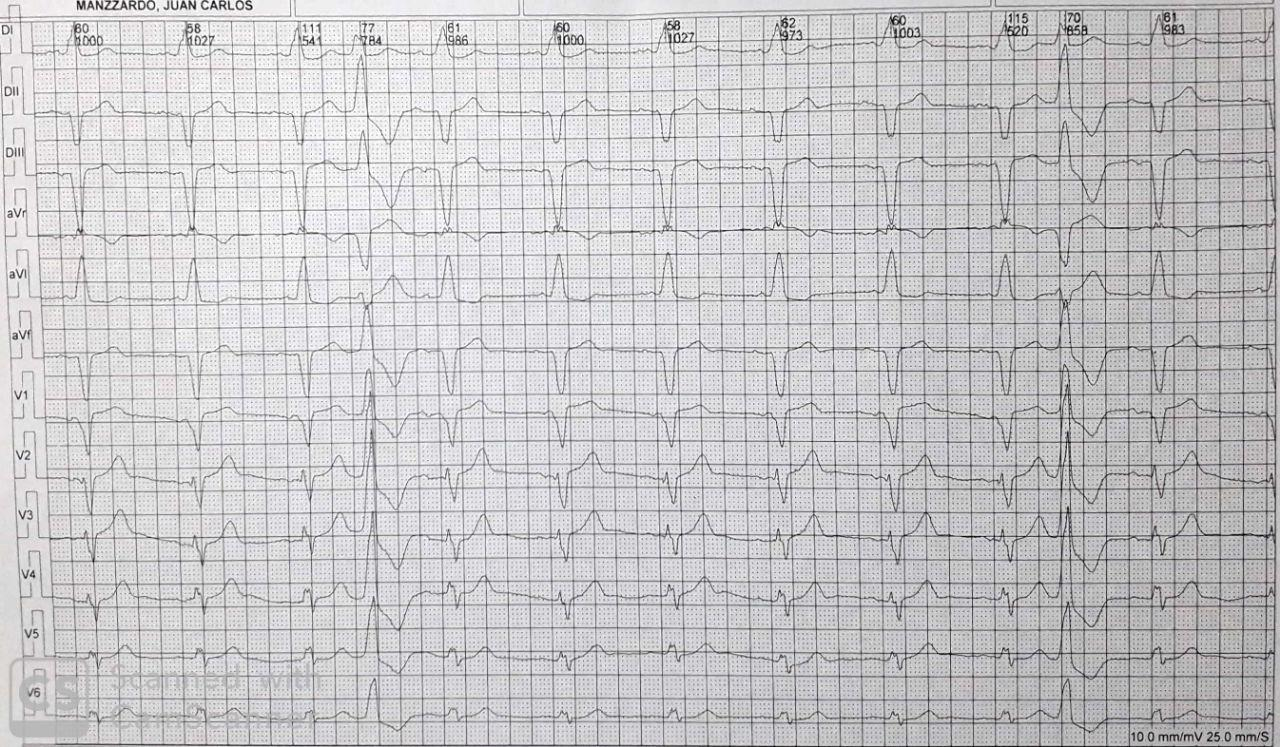 Paciente portador de MP DDD en cuyo ECG con filtro muscular NO se observan espigas que en cambio sí son visibles al eliminar los filtros