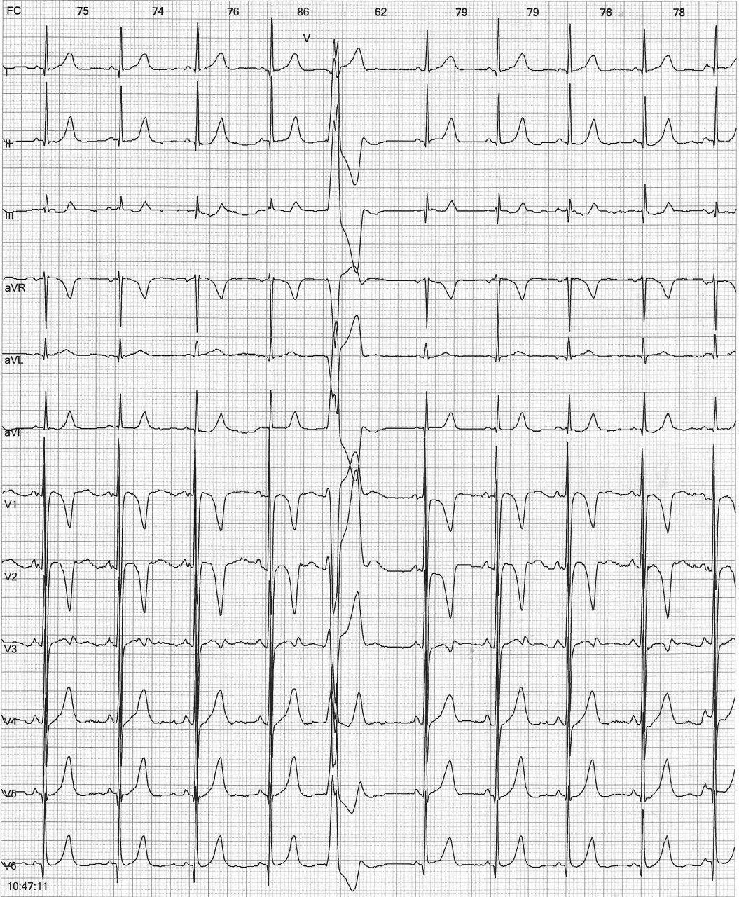 Niño de 5 años con ecocardiograma normal que presenta EVs frecuentes por probable DAVD