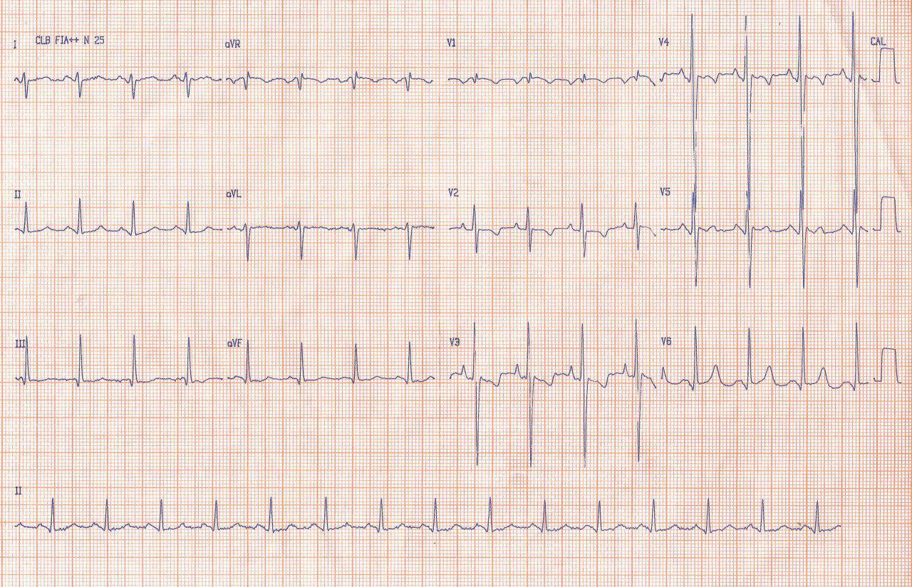 Paciente masculino de 26 años portador de enfermedad mitral reumática con cuadro de insuficiencia cardíaca a quién se practica reempazo mitral con bioprótesis