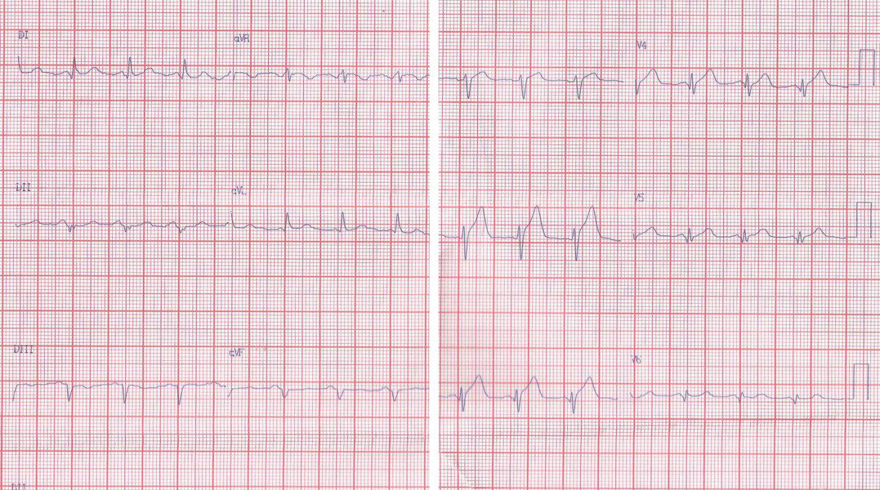 Paciente de 51 años con angor prolongado y presencia de isquemia grado 1 en el ECG debido a lesión de DA proximal