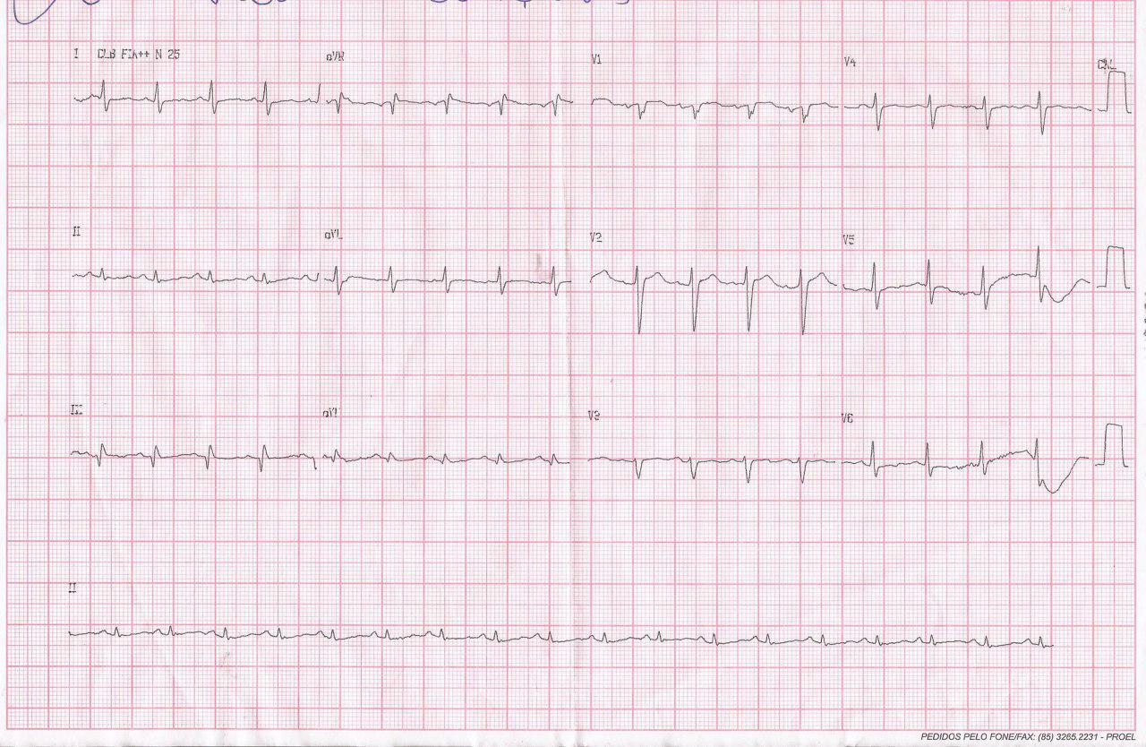 Paciente que presenta episodio sincopal en el que se constata patrón S1Q3T3 por presentar TEP masivo bilateral con arterias coronarias normales y evolución al óbito