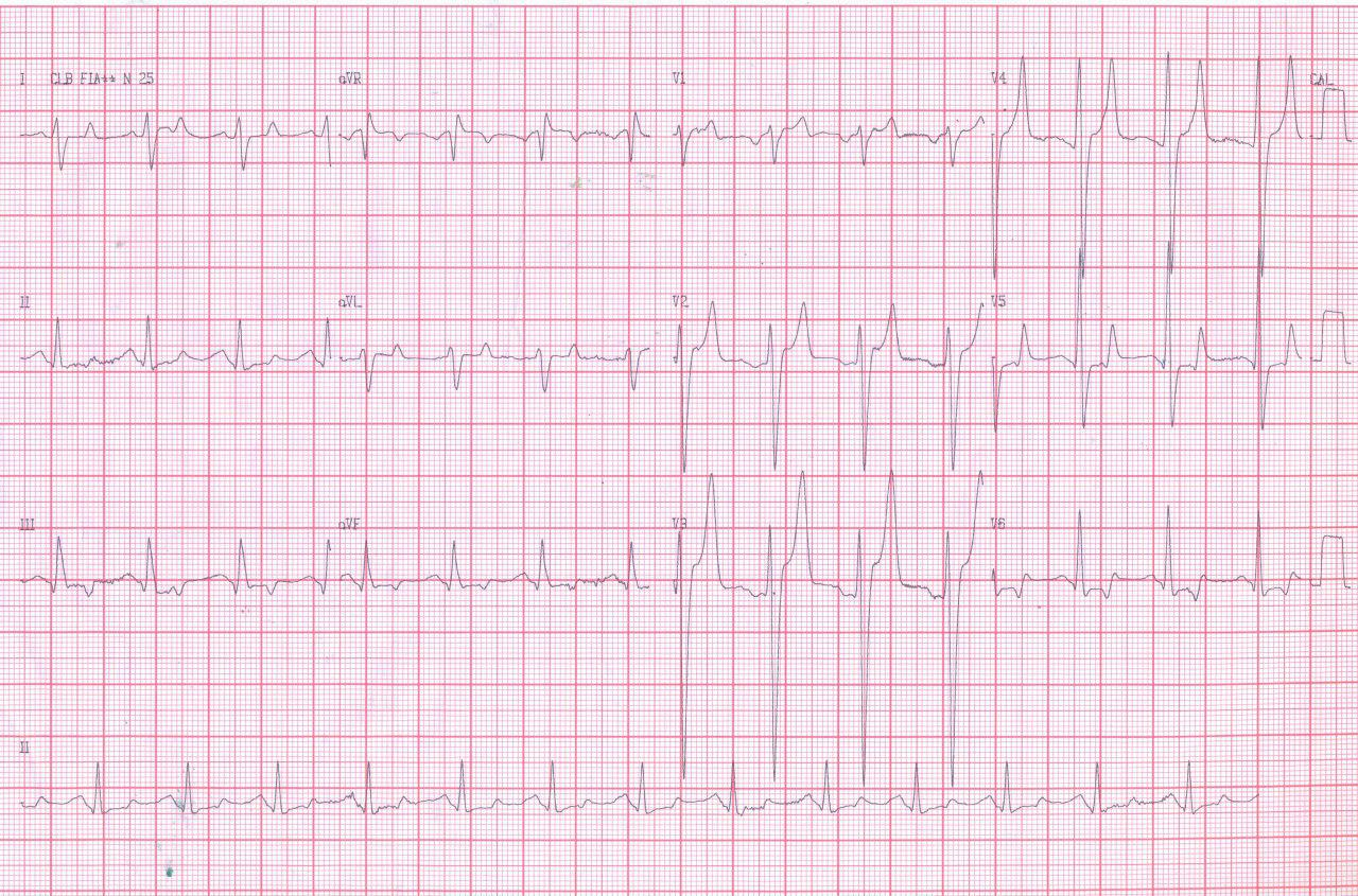 Paciente de 48 años, hipertenso, diabético y renal crónico con severa hiperkalemia que presenta angor prolongado y EAP hipertensivo