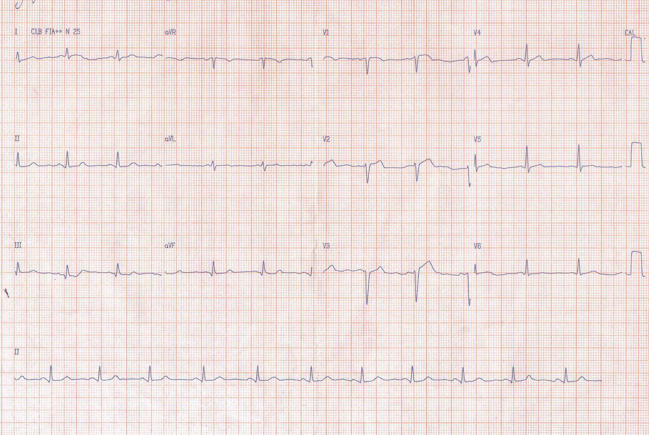 Mujer de 37 años con FR que cursa con SCA cuya CCG muestra severas y difusas lesiones coronarias