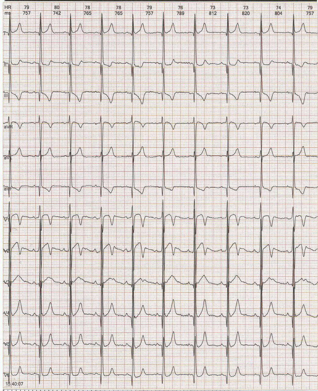 Paciente masculino de 27 años con palpitaciones y dolor precordial no anginoso que presenta vía anómala pósterolateral izquierda intermitente y Ondas T de memoria cardíaca