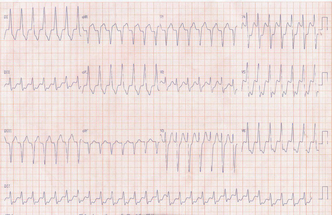 Paciente de 82 años que presenta palpitaciones por reiterados episodios de aleteo auricular que ceden con adenosina y que presenta obstrucción de DA del 80%