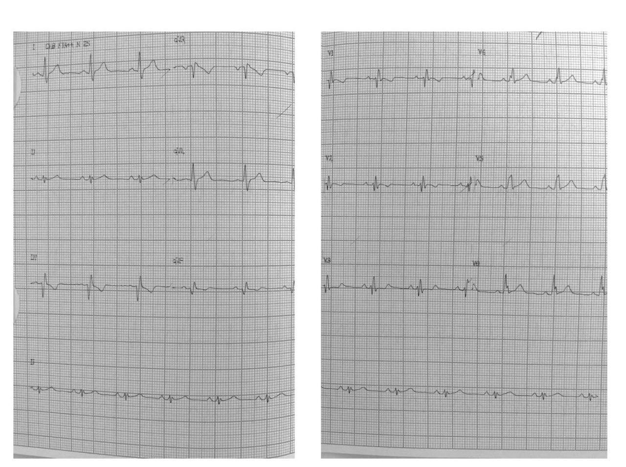 Paciente masculino de 32 años con palpitaciones paroxísticas portador de anomalía de Ebstein