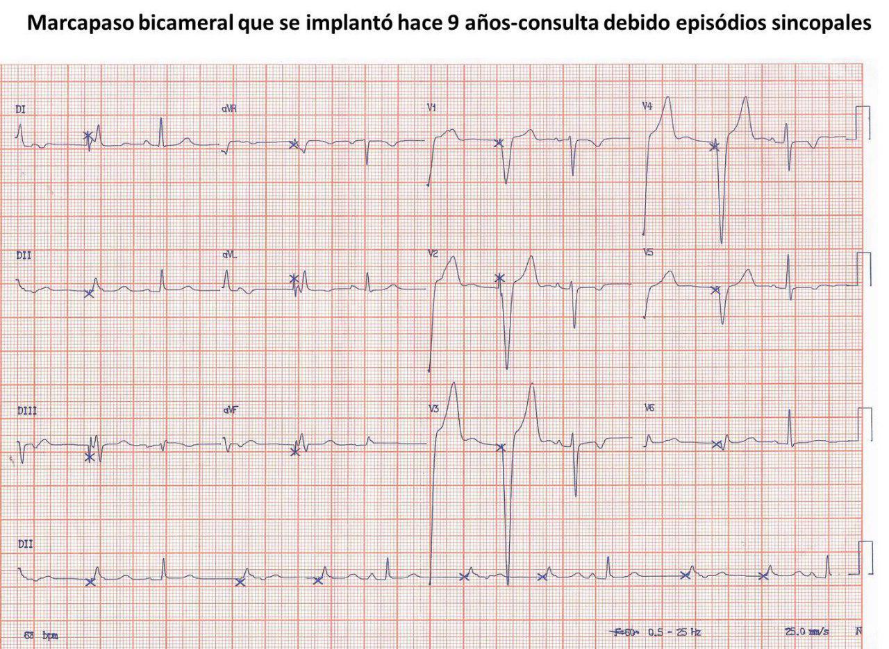 Paciente con MP bicameral implantado hace 9 años que presenta síncopes cuyo ECG muestra estimulación VVI por posible agotamiento y ondas T de memoria cardíaca