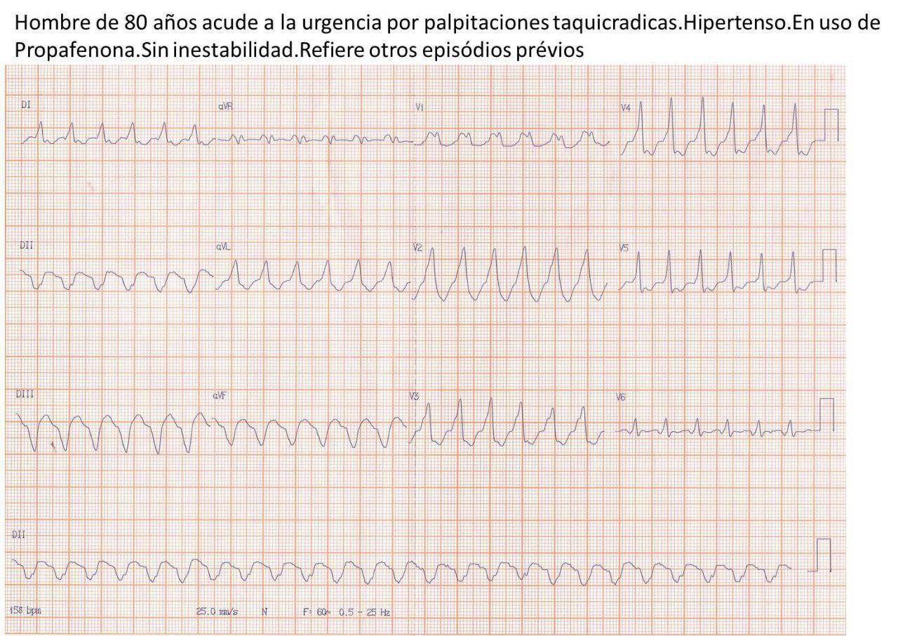 Hombre de 80 años con palpitaciones por presencia de TRAVO por vía pósterolateral izquierda que no cede con adenosina y sí con CVE
