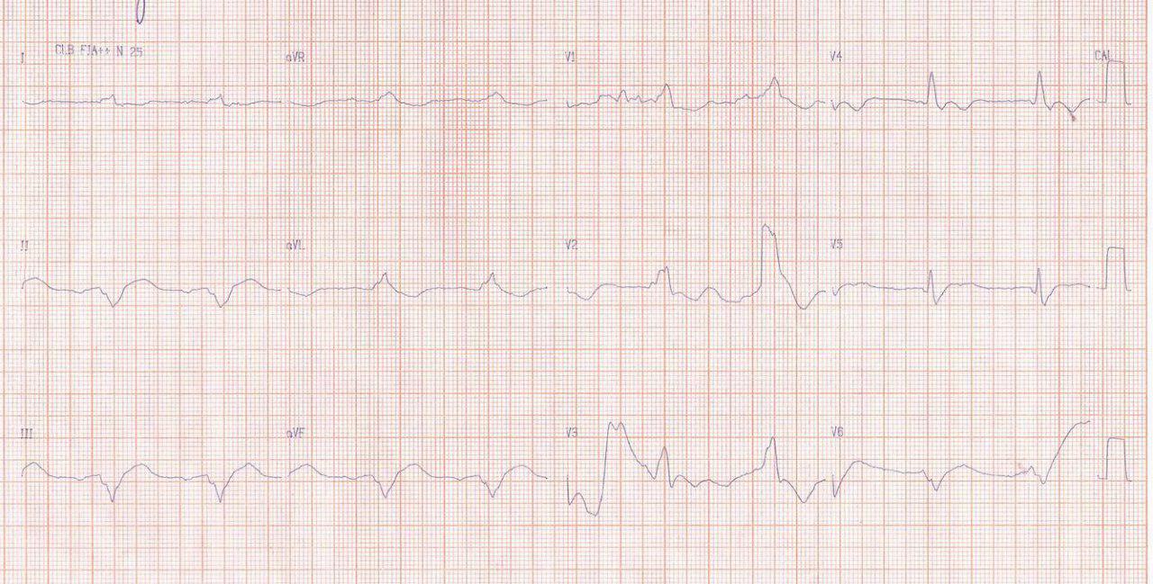 Hombre de 49 años portador de miocardiopatía chagásica crónica con CDI que presenta reiterados episodios de tormenta eléctrica y fallece